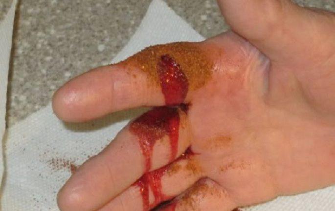 gjakderdhja