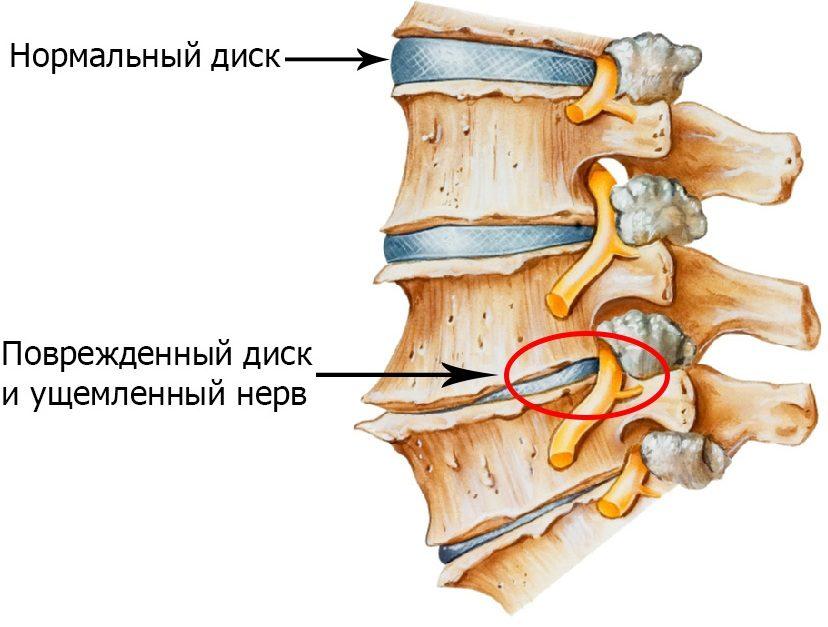 risunok-3-zashhimlenie-nerva-pri-osteohondroze